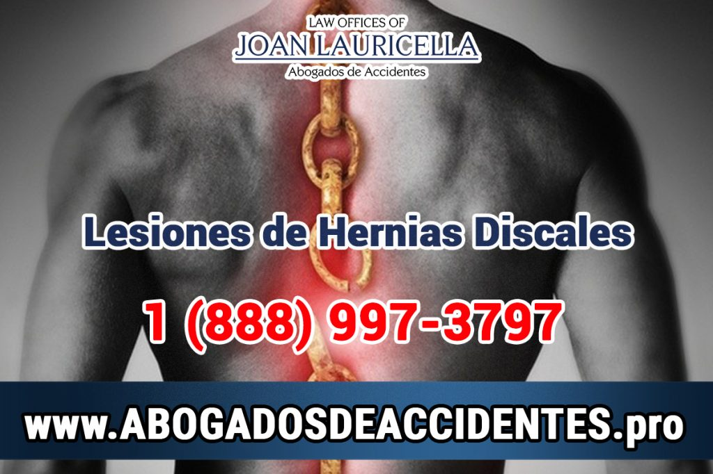 Abogados de accidentes dolor de espalda en Los Angeles