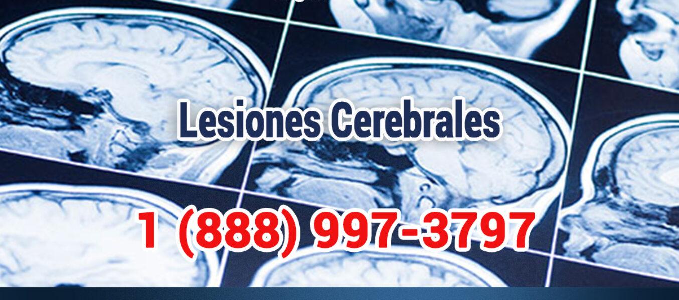 Lesión Cerebral Por Accidente De Motocicleta En Los Angeles