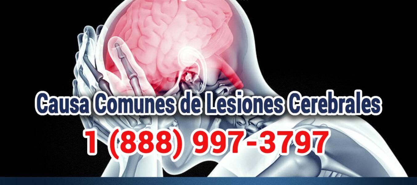 Causas Más Comunes De Lesiones Cerebrales En Los Angeles